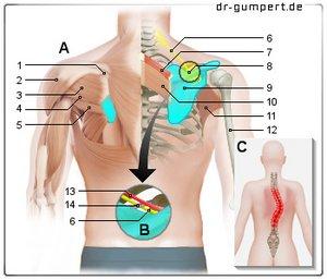 Der Erkrankungen die Behandlung der Wirbelsäule