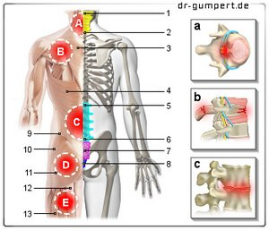 Was im Rücken unter dem linken Schulterblatt weh tun kann