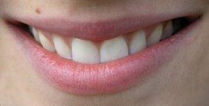 Rand um lippen roter Lippenleckekzem