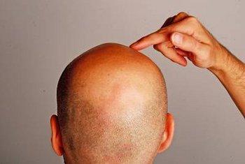 Rote Flecken Auf Der Kopfhaut Woher Kommt Das