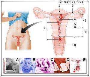 Gebärmutter entfernen nachteile