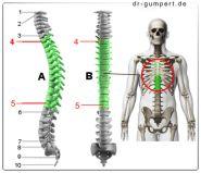 Abbildung Rückenschmerzen mittlerer Rücken