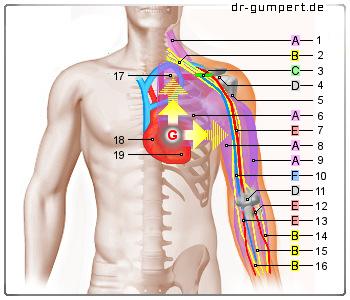 ziehen in der linken brust
