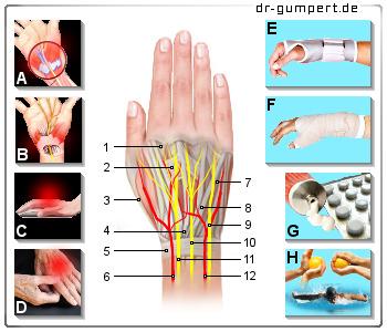 Rheumatologische Diagnostik