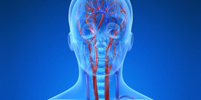 Arteria carotis