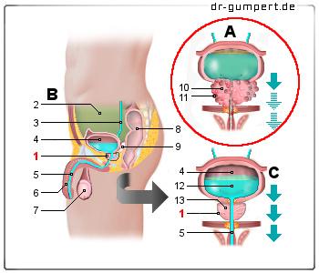prostatakrebs definition