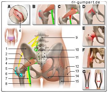 Hüftschmerzen - Symptome - Behandlung