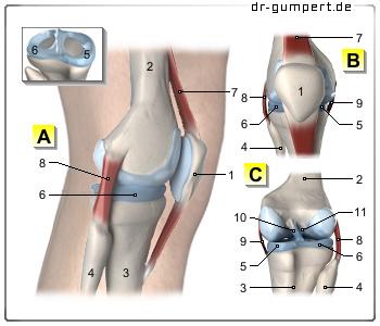 Knie lange künstliches arbeitsunfähig wie OZF: Schlittenprothese