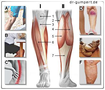 Schmerzen im Bein (Beinschmerzen)