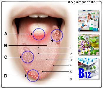 5cee4969c35 Rote Flecken auf der Zunge - Ursachen und Behandlung