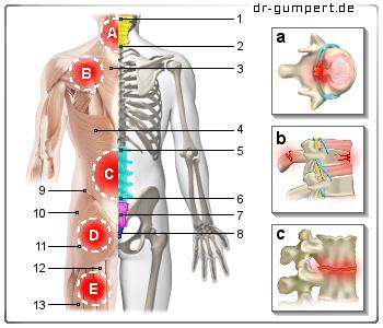 Das Trauma die Wirbelsäule das Rückenmark die chirurgische Behandlung