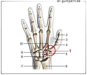ist arthrose schmerzhaft