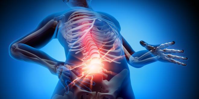 Entzündung des Rückenmarks