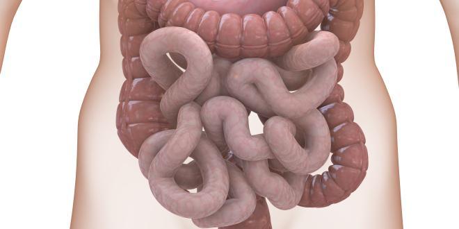 Darmschlingen Entzündung