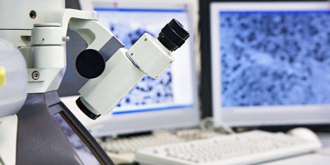 Biopsie des Gebärmutterhalses