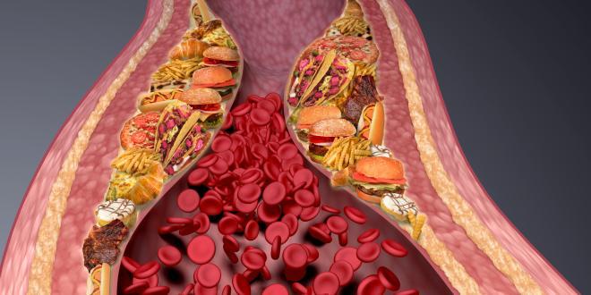 Erhöhter Cholesterinspiegel Durch Stress