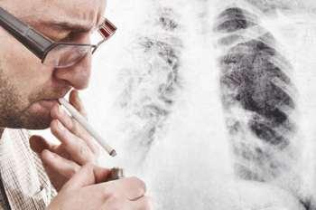 Brennen In Der Lunge Ist Das Gefährlich