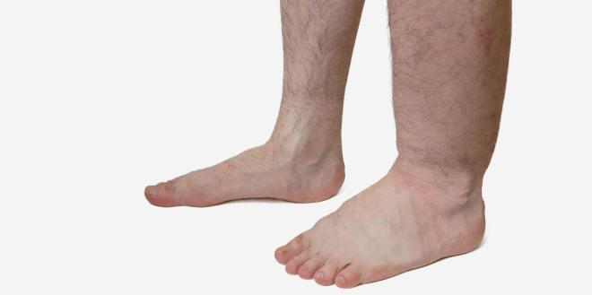 Schwere Beine - Was tun?