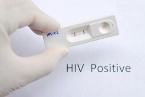 hiv untersuchung kosten