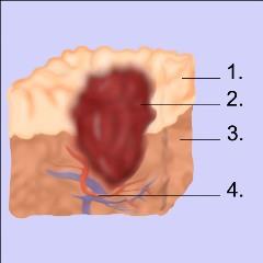 Blut im Mund - Innere Medizin - Frag einen Arzt
