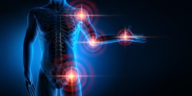 Reaktive Arthritis: Therapie und Tipps zum Vorbeugen