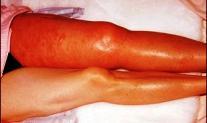 Wie Venen der Beine zu beruhigen