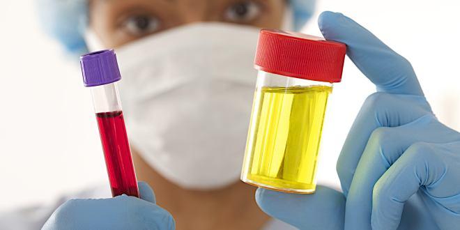 Dunkler Urin