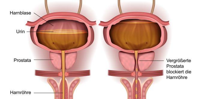 Gewichtsverlust bei Prostatakrebs mit Lebermetastasen