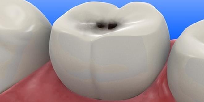 Grau karies zahn Zahn wird
