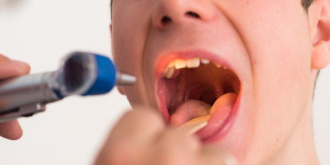 Schwillt an lippe allergie Geschwollene Oberlippe
