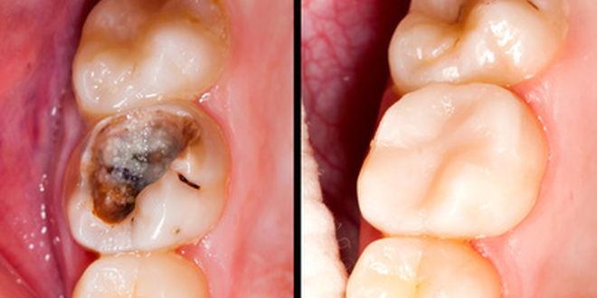 Zahn reagiert nicht auf kälte