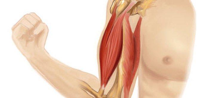 Schmerzen im rechten Arm