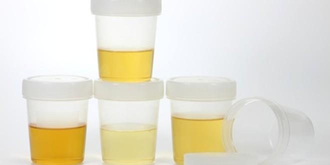 Trotz wenig urin trinken viel oft wasserlassen