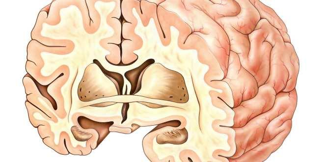 Gehirn Hypothalamus