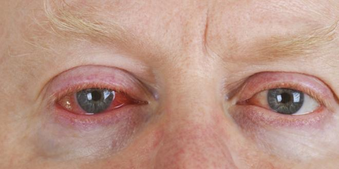 Rotes Auge