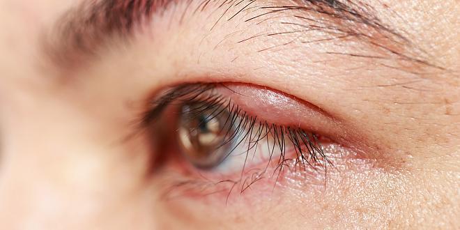 Entzündung des Augenlids
