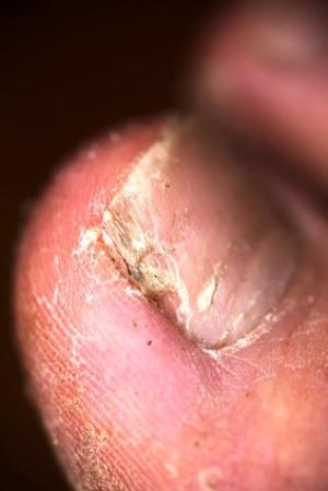 Slojatsja die Nägel die Behandlung die Präparate