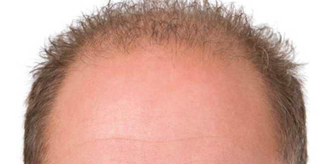 lipom stirn