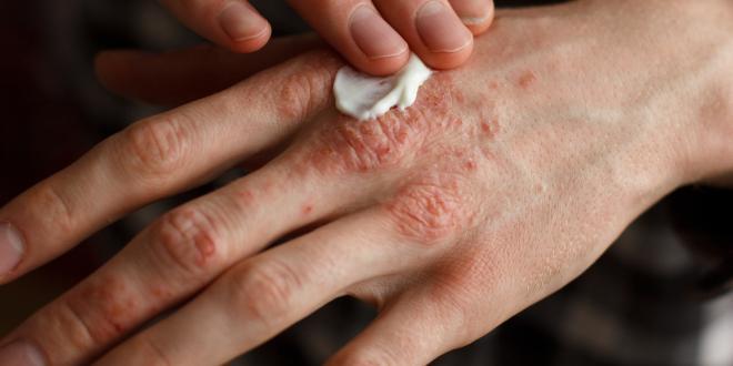 Arthrose: Übungen für die Finger
