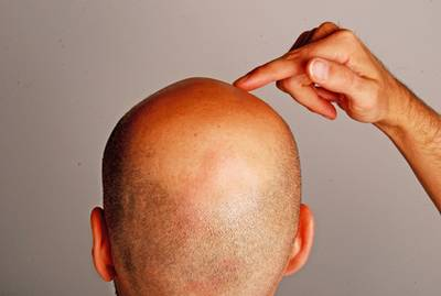 Die richtige Maske für das Haar mit perzowoj von der Tinktur