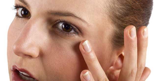 Hautausschlag Um Die Augen