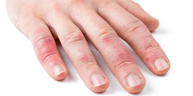 Auf dem Finger wächst der Zapfen