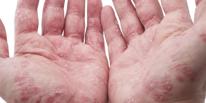 Das Mittel von gribka auf der Nägel auf den Fingern der Beine