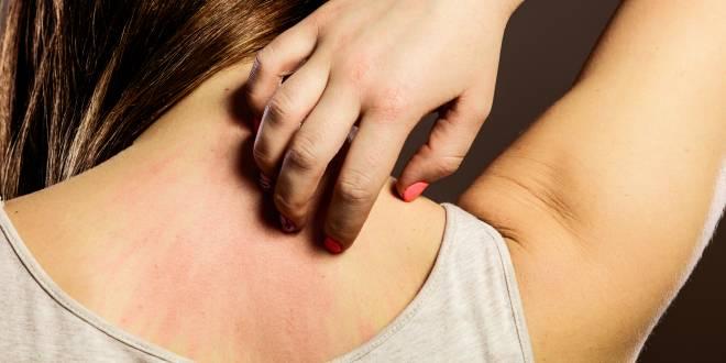 Hautausschlag Im Nacken