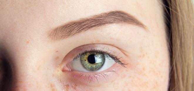 Lippe neurodermitis Sensiderm Creme