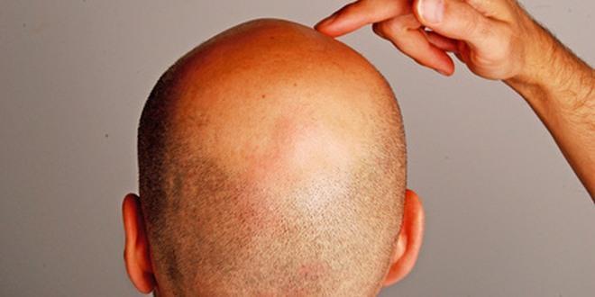 Fabelhaft Schuppenflechte der Kopfhaut #CV_71