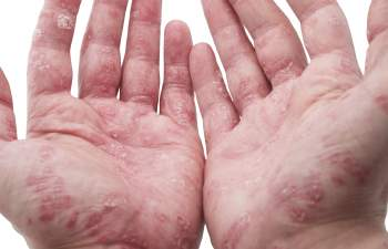 Small Itchy Eczema Bumps on Hands, Fingers, and Elbow