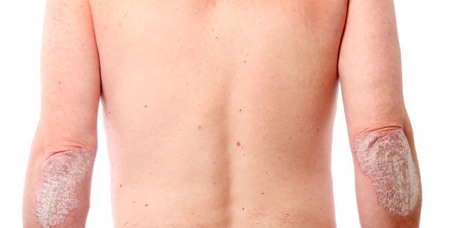 Körper am trockene flecken Rote Flecken