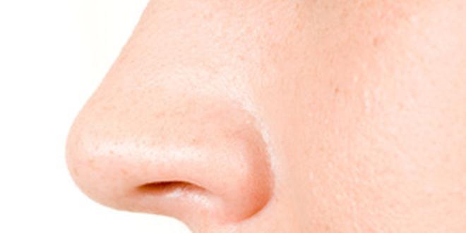 Geschwollen innen nase und schmerzt von Nasenschleimhaut geschwollen: