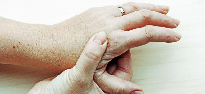 Schwellungen und Knoten an den Händen – Ursachen: Hand- und Fingergelenksarthrose